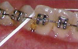 Braces Wire Popped Out | Braces Emergency Orthodontic Emergency Poking Wire Deal With